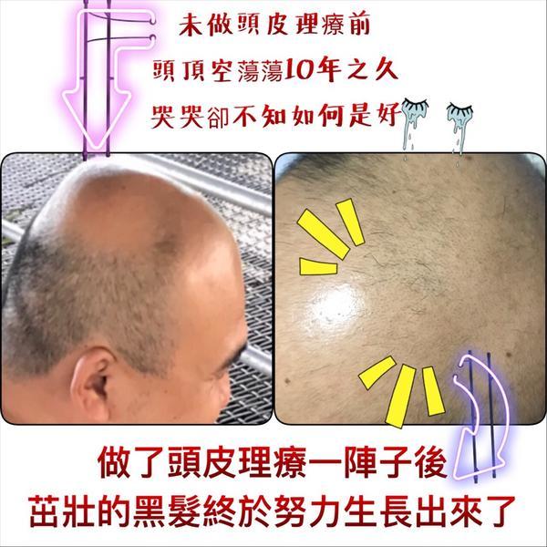 真的長出來了👏 把握黃金生髮期,搶救毛囊!  👉🏻去除毛囊油脂  暢通油脂堵塞 👉🏻清除頭