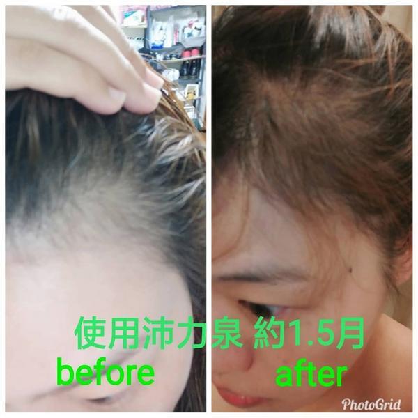 使用沛力泉會不會長頭髮?? 依常理判斷   減少掉髮的下一步應該就自己會長了吧  #保健酮超能版 #