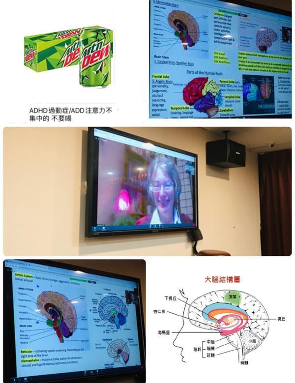 希塔IA直觀掃描Day13 ~神奇奧妙的大腦希塔IA直觀掃描Day13 ~神奇奧妙的大腦 ➡️大腦跟