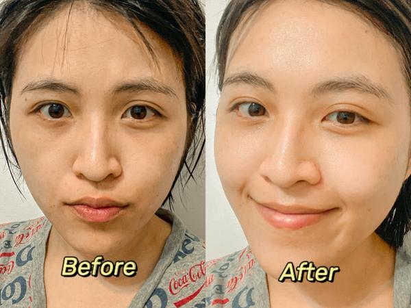 【保養 分享】炎炎夏日🌞森田藥粧多重玻尿酸複合精華高保濕面膜給你補充滿滿的水份💦最近在台北生活的