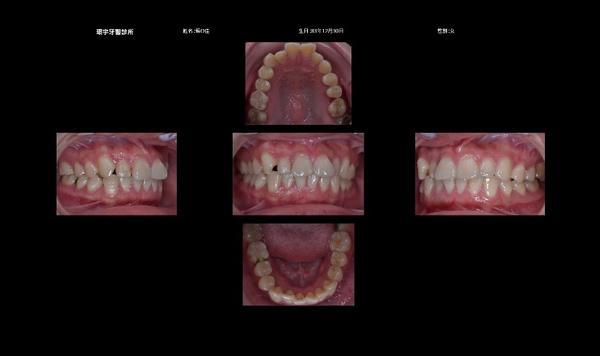 (中壢&牙齒)我終於戴上矯正器了!今天我要介紹一家我決定在這做矯正治療的牙醫診所,我考慮很久才去的。